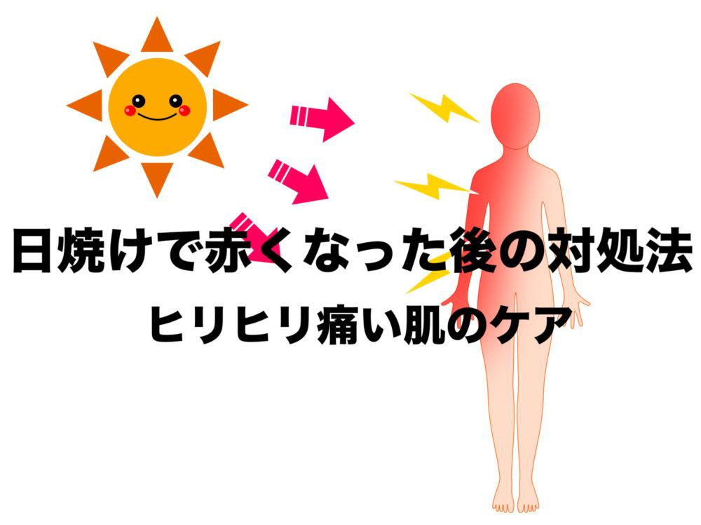日焼け 痛い 対処